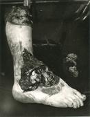 Untitled (Amputated Foot), 1939 Gelatin silver print mounted to board, printed c. 1980s. 9 9/162 x 7 9/16 inches
