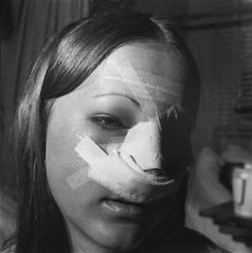 Nose, Baroness Erlanger Hospital, Chattanooga, Tennessee, 1976 Gelatin silver print, printed c. 2007 19 3/4 x 15 7/8 in.