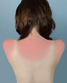 Sunburn in Naples, 2010 Archival inkjet print 25 x 20 inches