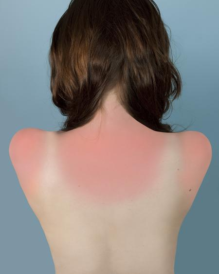 Sunburn in Naples, 2010 Archival inkjet print. 25 x 20 inches