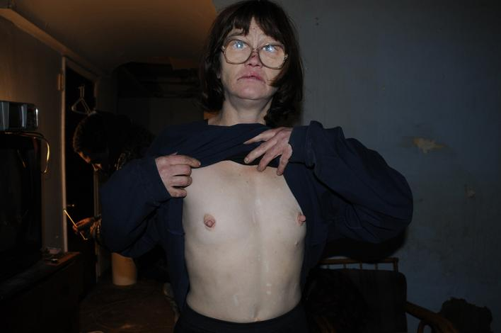Eileen Showing Sternum Scar, 2001-2008 Archival inkjet print 20 x 30 inches